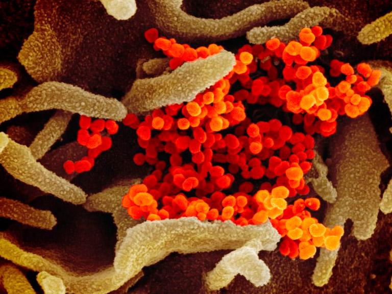 Columna de la Dra. Fabiola Osorio, Presidenta de la ASOCHIN: «Coronavirus, sistema inmune y la apreciación de la ciencia» graphic